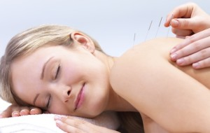Acupuncture needles on the back of a beautiful woman